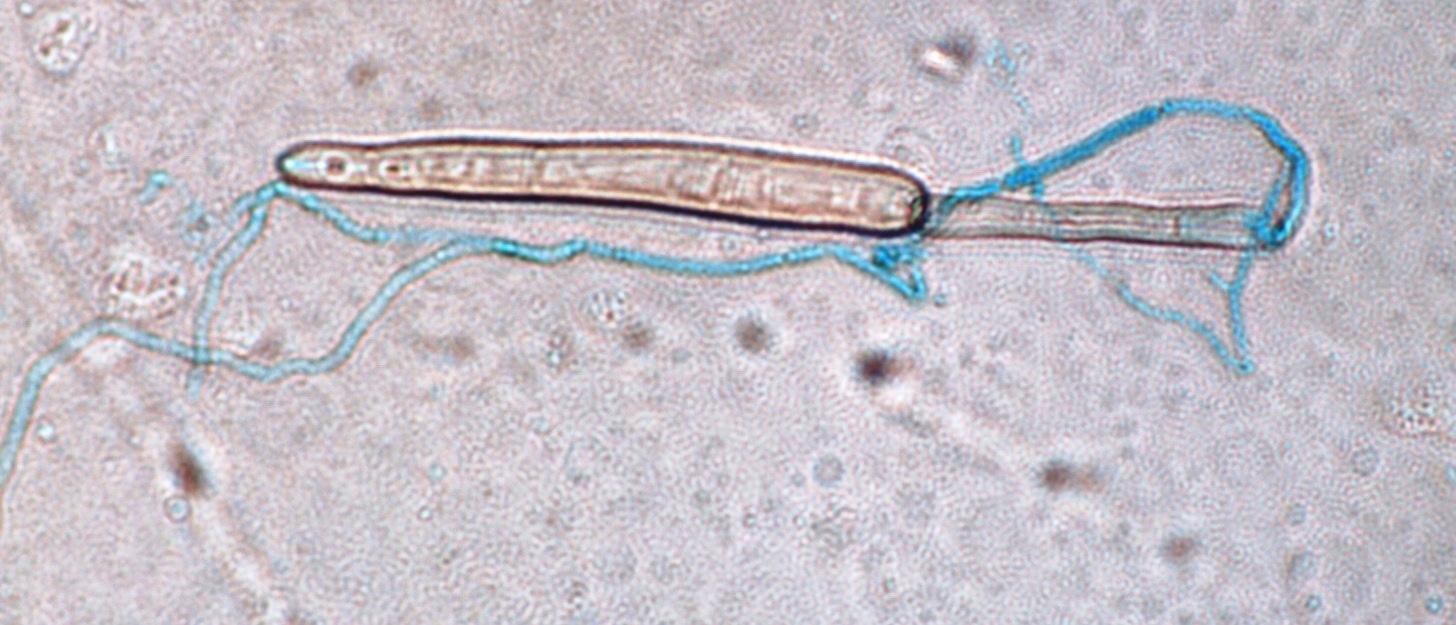 Fig2 spore